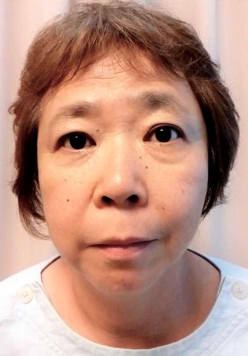 顔ヤセビフォー3-1