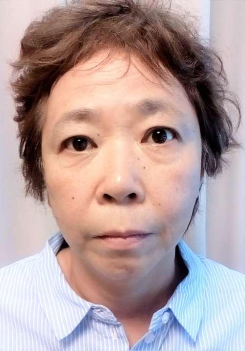 顔ヤセアフター3
